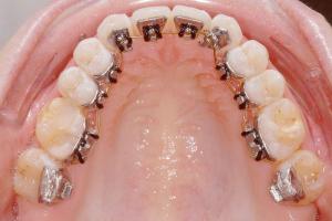 innenliegende Zahnspange - Oberkiefer