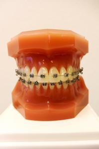Feste Zahnspange - außen